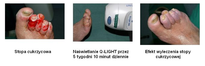�wiat�oterapia Q.Light