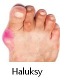Leczenie haluksów Vitafonem