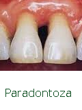 Leczenie paradontoza Vitafonem